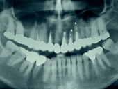 Dental xray x-ray film showing rows of traditional amalgam fillings and caps. - Stock Image